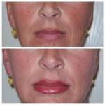 Permanent Make up Lippe mit voll Schattierung direkt nach der Behandlung